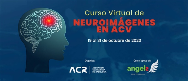 Curso Virtual de Neuroimágenes en ACV