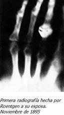 Primera Radiografia en noviembre de 1895